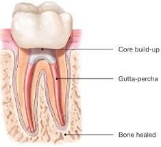 Best Root Canal Treatment in India