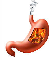 Top 5 Heartburn Causes